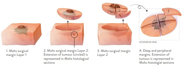 Excision for Mohs Micrographic Surgery